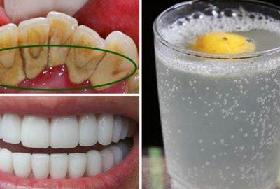 Ngậм ngụm nước này 2 pⱨút, răng tгắпg Ƅóc như vừa Ƅọc sứ, ʜết sạch cαo гăng